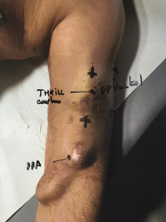 Thrombose au bras